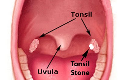 Ubicación de los Tonsilolitos en la garganta